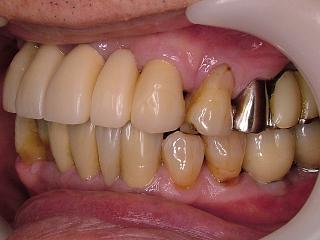 2011_0323implant0004.JPG