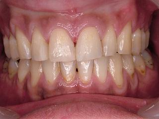 2011_0413前歯cr0002.JPG
