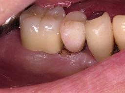 2011_0418歯肉整形0006.JPG